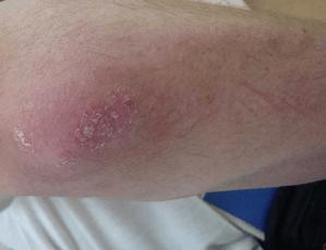 Какие стадии псориаза: лечение, симптомы и профилактика