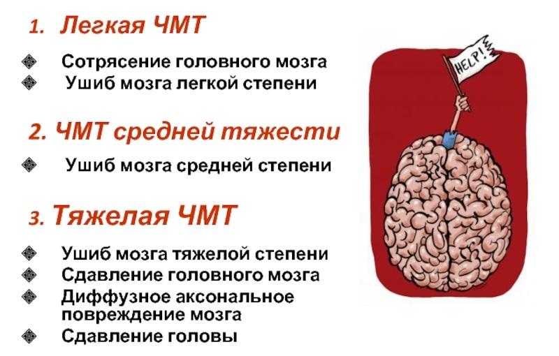 Степени сотрясения головного мозга