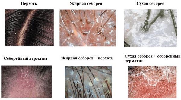 Понятие: сухая себорея. Как лечить, симптомы и причины
