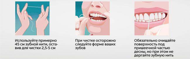 техника очистки зубной нитью