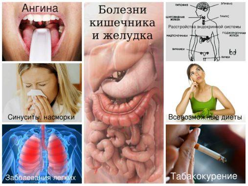 болезни, вызывающие неприятный запах изо рта
