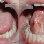Почему болит язык сбоку и как его вылечить