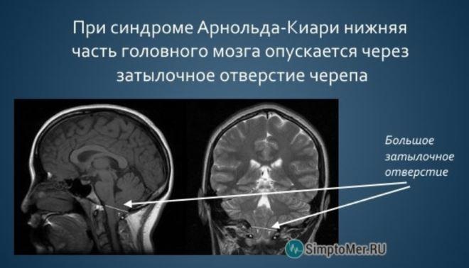 механизм развития синдрома Арнольда-Киари