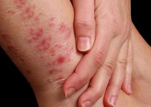Экзема: фото симптомы и лечение у взрослых