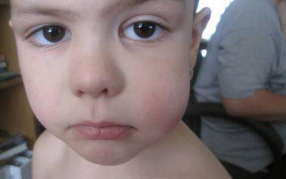 опухшая щека у малыша