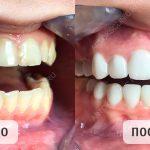 Что такое виниры для зубов и какие лучше