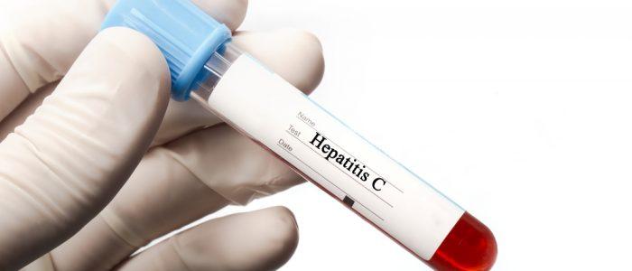 Вирусная нагрузка при гепатитах
