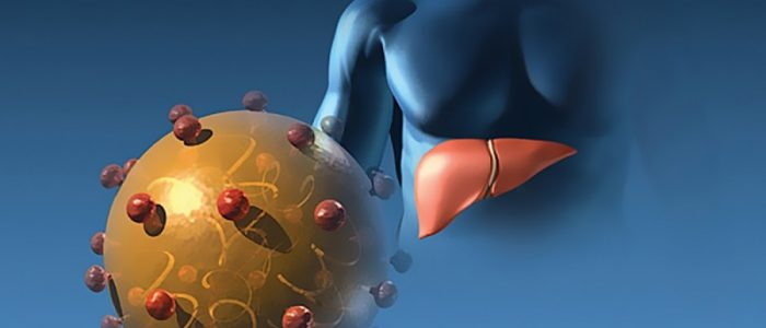 Гепатит А в хронической форме