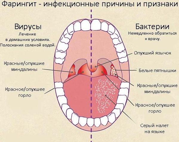 Бактериальный фарингит