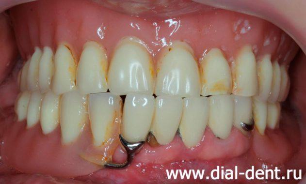 воспаление под зубным протезом