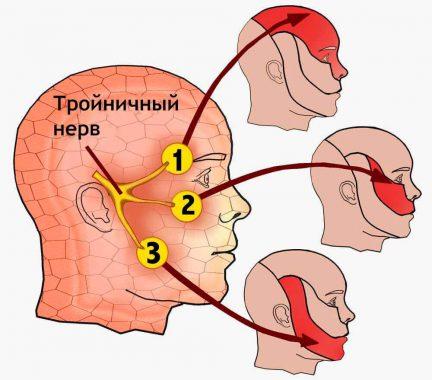 воспаление тройничного нерва у взрослых