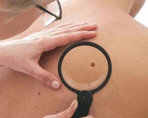 Что делать, если воспалилась родинка на теле: причины и последствия