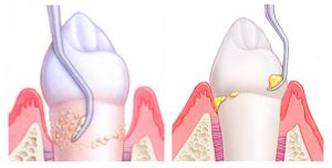 виды камней на зубах