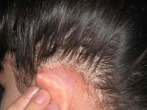 Жирная себорея кожи головы: методы лечения