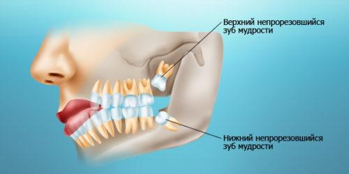 верхний и нижний зубы мудрости