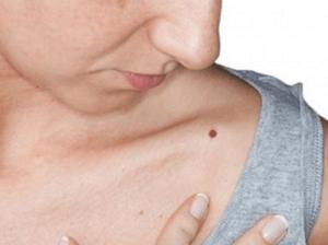 Значение родимых пятен у женщин — на всех местах тела