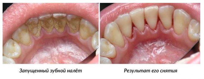 зубы до и после снятия камня