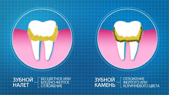 отличие зубного налёта от камня