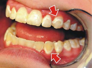 пример зубных отложений