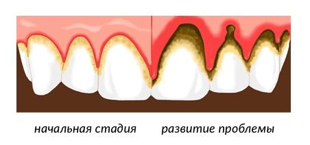 последствия появления зубного камня