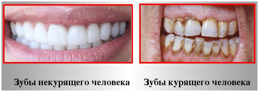 Курение создает опасность болезней десен и зубов
