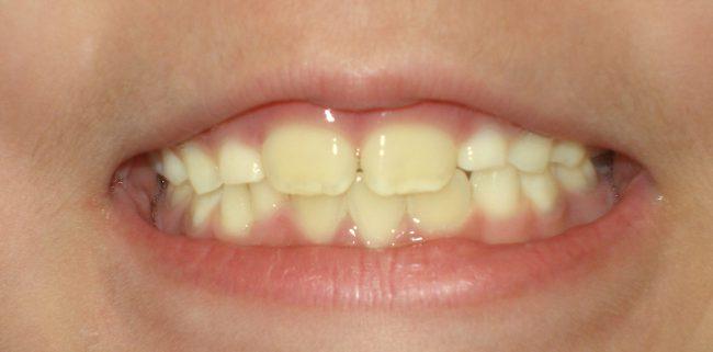 желтые детские зубы
